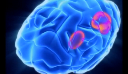 Parts of the Brain Affected by Dyslexia