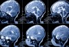 Tackling the Early Identification of Dyslexia with the Help of Neuroimaging